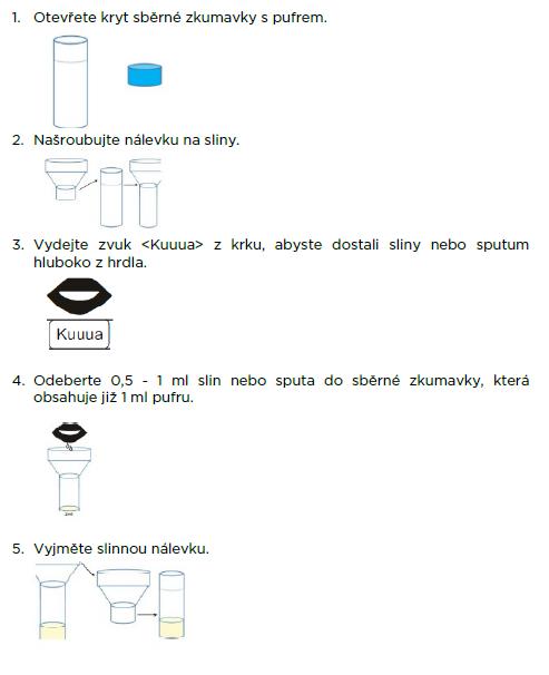 postup_1